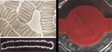 hematology analyzer Rheoscan Agg