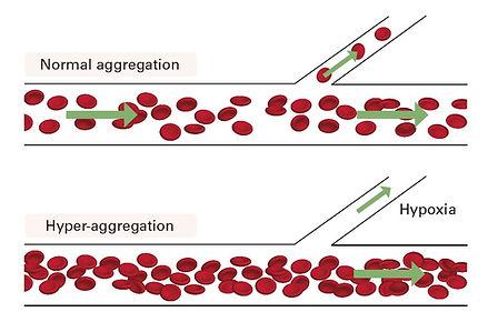 hematology analyzer RheoSCAN Q2