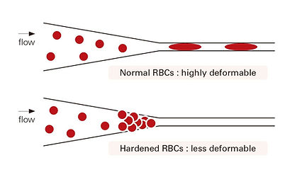 hematology analyzer RheoSCAN Q1