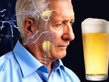 La cerveza podría ayudarte a prevenir el riesgo de desarrollar alzhéimer🧠🍺#SinExcesos🚫