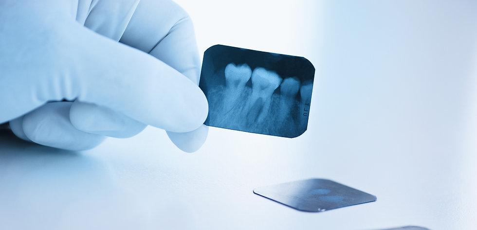 Periodontitis - Direct Diagnostics