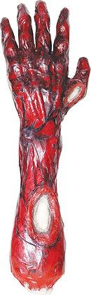 Burnt Arm