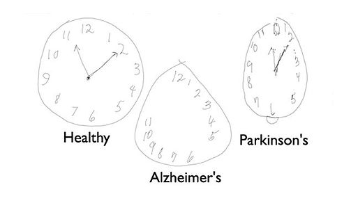 alzheimers-clock-drawing-test-1363998292
