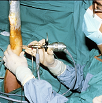 arthroscopy1.png
