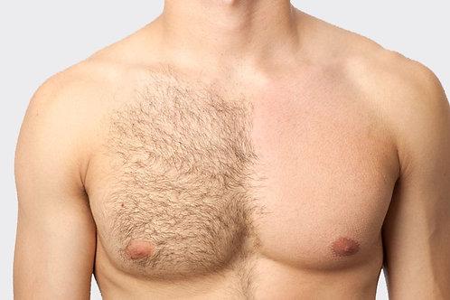 8 séances épilations dos ou torse homme  entières - 50%