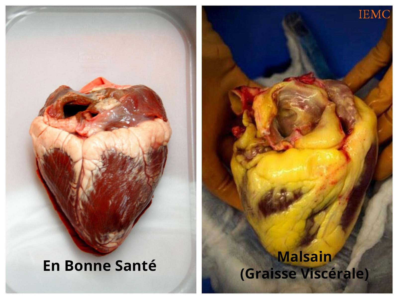 """Résultat de recherche d'images pour """"coeur graisse"""""""