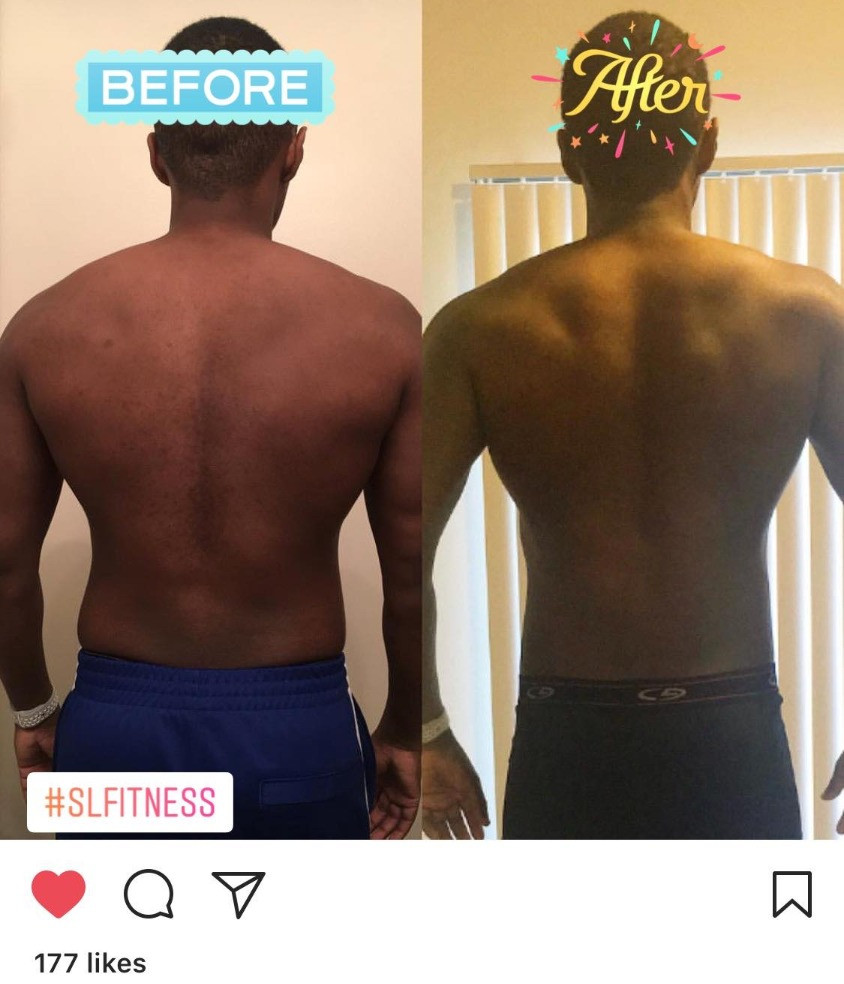 Back Before and After - Client Durell