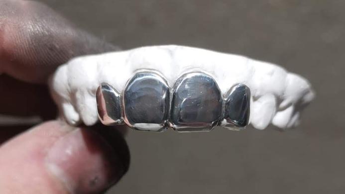 Four Silver teeth