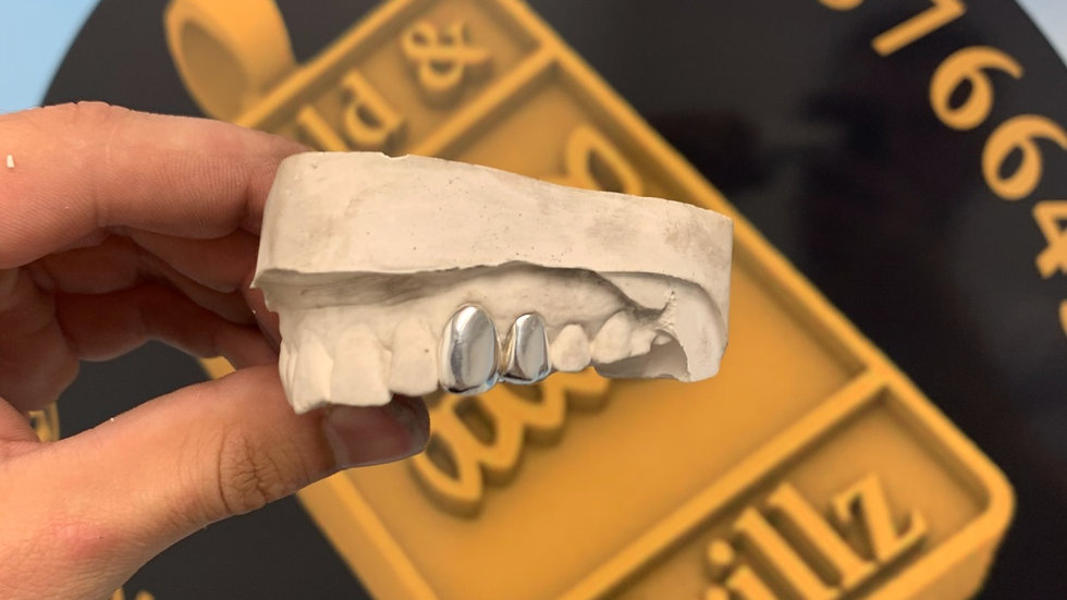 Two silver teeth