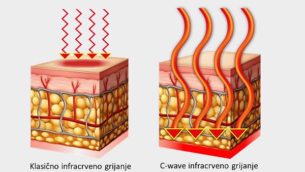 Short vs C-wave infrared heating + edede