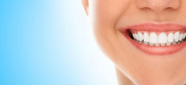 sonrisa carillas esteticas