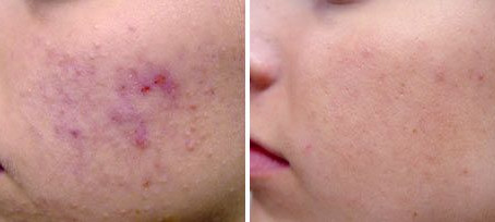 A Fast and Simple Solution for Clear Skin