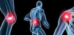 Prevention of Musculoskeletal Disorders in the Workplace