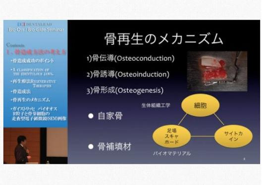 Bio-OssBio-Gideセミナー.jpg