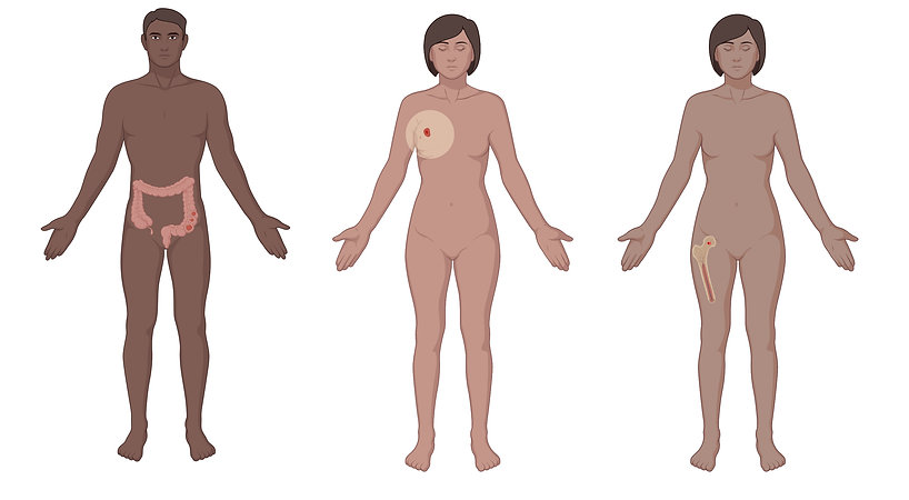 body%20cancer%20types_edited.jpg