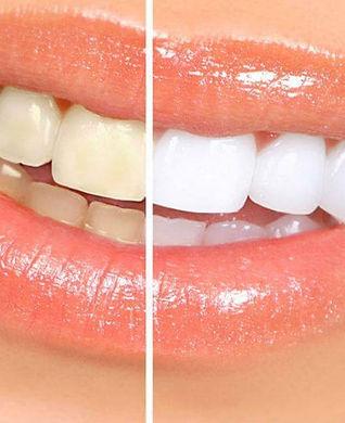 otbelivanie-zubov-lazerom-protsedury-zoo