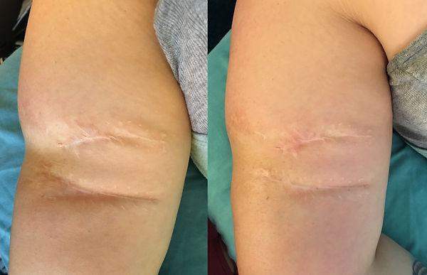 dog bite scar.jpg