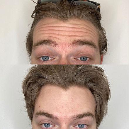 rynkebehandling med Botox i panden