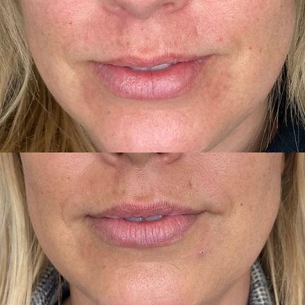 Lipflip med Botox