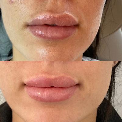 Læbekorrektion med filler