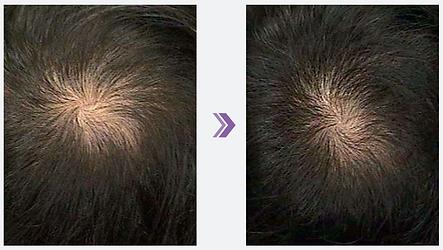 Hairfiller til uønsket hårtab