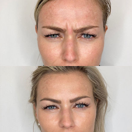 rynkebehandling med Botox i bekymringsrynken