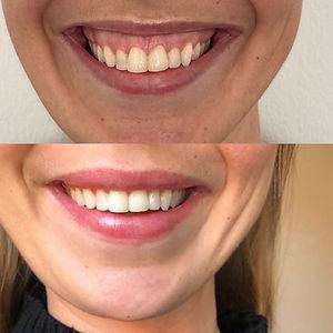 gummy smile med botox