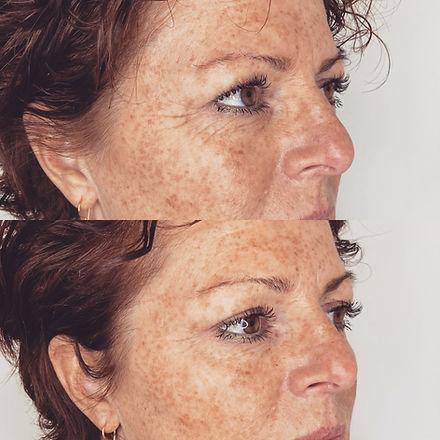 rynkebehandling med Botox i kragetær