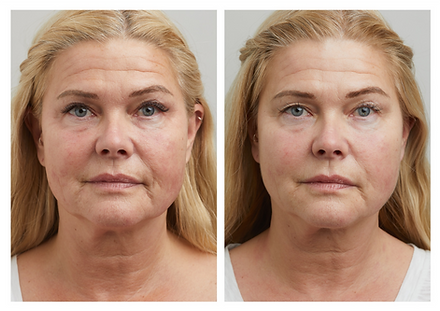Profhilo behandling til hudforyngelse og rynkebehandling