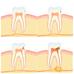 Miten hampaaseen syntyy reikä?