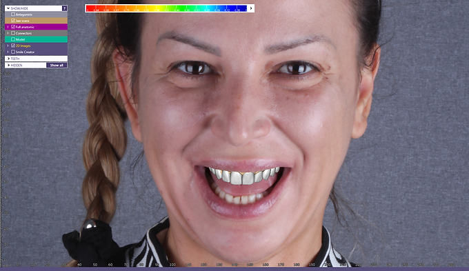 Digital Smile Design and Wax-up