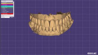 2020-05-28_00001-001_DentalCadScreenshot