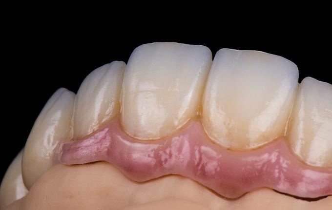 Full Digital Cases on Implants