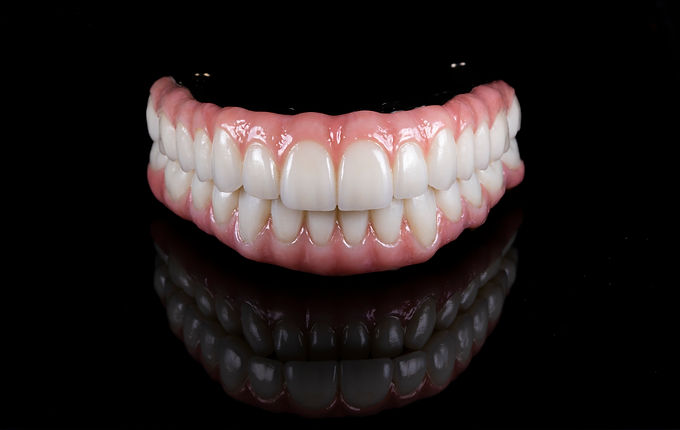 Full Mouth Rehabs on Implants