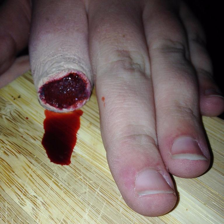 Severed Finger