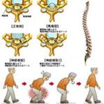 代官山、脊柱管狭窄症、下肢の神経痛、整体、骨盤矯正、産後の骨盤矯正、ぎっくり腰、寝違え、肋間神経痛、脳、脳脊髄液、脳脊髄液の循環を良くする、認知症予防、膝痛、足関節痛