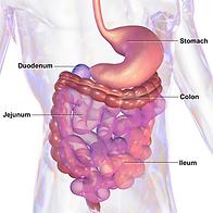 Irritable Bowel Syndrome, IBS,