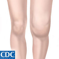 Arthritis, Joint Pain, CBD, Treatment, Joints