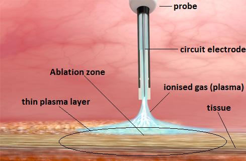 argon plasma coagulation 2.png