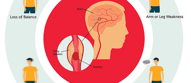 Learn warning signs of a stroke
