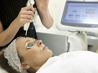 Treating Rosacea with Intense Pulsed Light