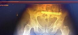 pelvisscrews.jpg