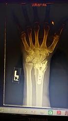 wristplate.jpg