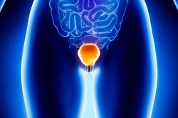 Являются ли внутрипузырные инстилляции гиалуроновой кислоты c хондроитин сульфатом полезными для про