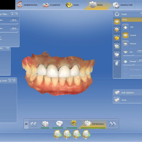 Step 1: Digital optical dental impression