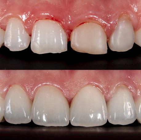 Step 3: Digital dental milling