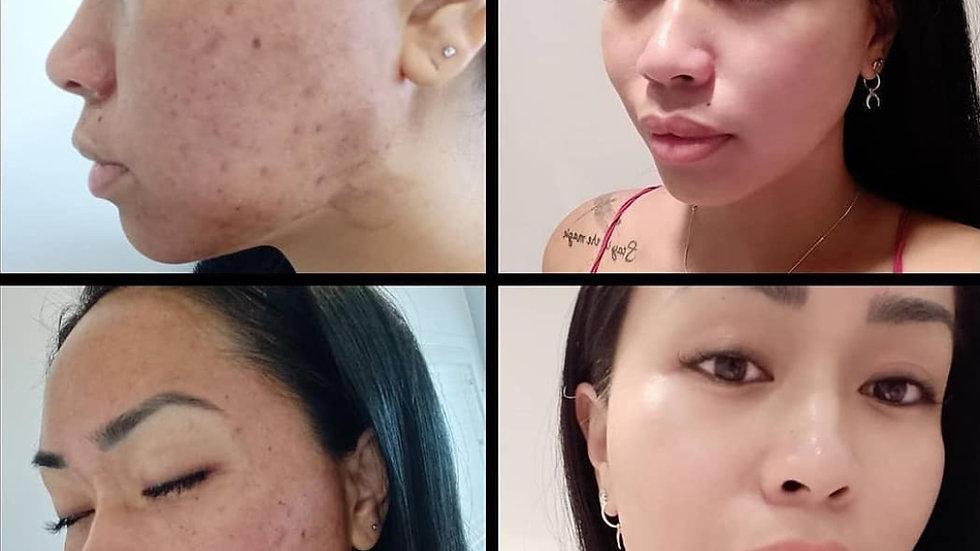 14 Day Complete Skin Renewal Program