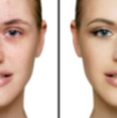 Female face acne and with  perfect skin,