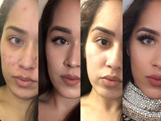 How I went from acne scarred skin to (almost) perfect smooth skin
