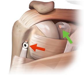 Reparo de lesão do tendão da cabeça longa do bíceps